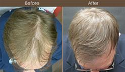 Hair Restoration In NYC Before And After
