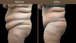 Before & After Tummy Tuck