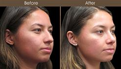 Before & After Rhinoplasty In New York