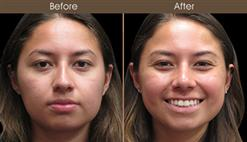 Before And After Rhinoplasty In New York City
