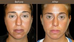 Nose Surgery Before & After
