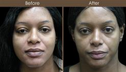 Nose Reshaping Surgery Results