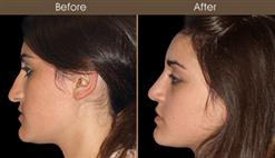 Before & After Rhinoplasty Treatment