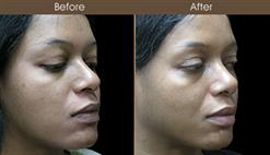Before And After Nose Reshaping Surgery