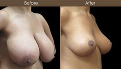 Before & After Breast Reduction In NYC