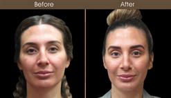 Before And After Nose Reshaping Surgery In NYC