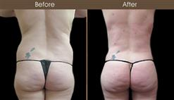 Before & After Gluteal Fat Grafting