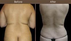 Before And After New York Liposuction