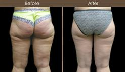 Before & After Thigh Lift