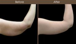 Brachioplasty Surgery Before And After