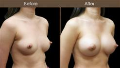 Breast Implant Before & After
