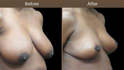 Before & After Breast Reduction