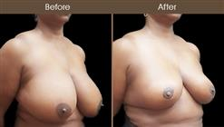 NYC Breast Reduction Before And After