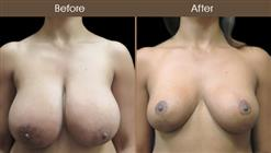 Before And After Breast Reduction In NYC