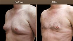 Male Breast Reduction Surgery Before & After