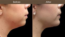 Before & After Chin Augmentation