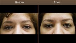 Blepharoplasty Before & After