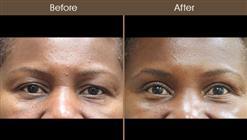 Before & After Blepharoplasty