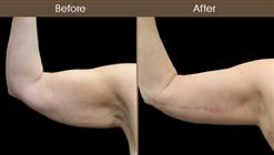 Before And After Arm Lift Front View