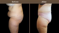 Body Lift Surgery Before & After