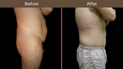 NYC Body Lift Surgery Before & After