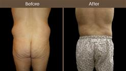 NYC Body Lift Surgery Before And After