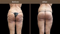 Thigh Lift Surgery Before & After