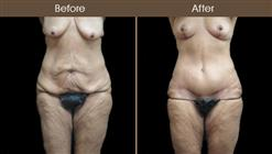 Before And After Body Lift Surgery In NYC