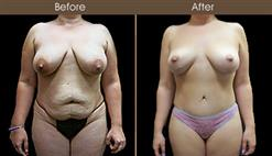 Before & After Tummy Tuck Surgery In New York City