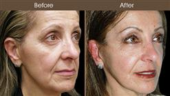 Facelift Surgery Results