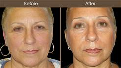 Before & After Facelift Treatment