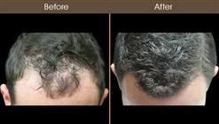 Hair Restoration Treatment Results