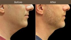 Before And After LazerLift Neck Treatment