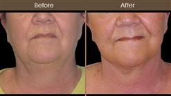 Necklift Surgery Before & After