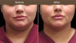 Scarless Face Lift Before & After