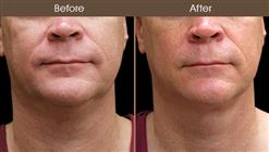Scarless Neck Lift Before And After