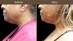 Scarless Neck Lift Surgery Results