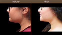 Scarless Necklift Before And After