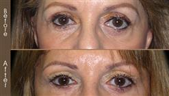 Blepharoplasty Surgery Before & After