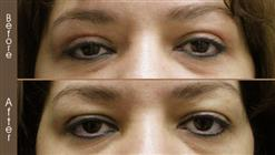 Before And After Blepharoplasty Surgery In NYC