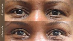 Before And After Eyelid Surgery In NY
