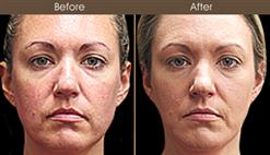 Scarless Face Lift Surgery Results
