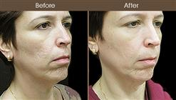 LazerLift Treatment Before & After