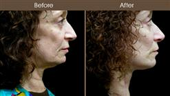 Neck Lift Surgery Before & After