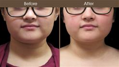 Before & After Scarless Neck Lift Surgery