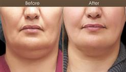 Scarless Facelift Before And After
